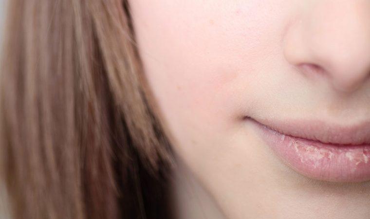 Herpes occhio- sintomi e tipi